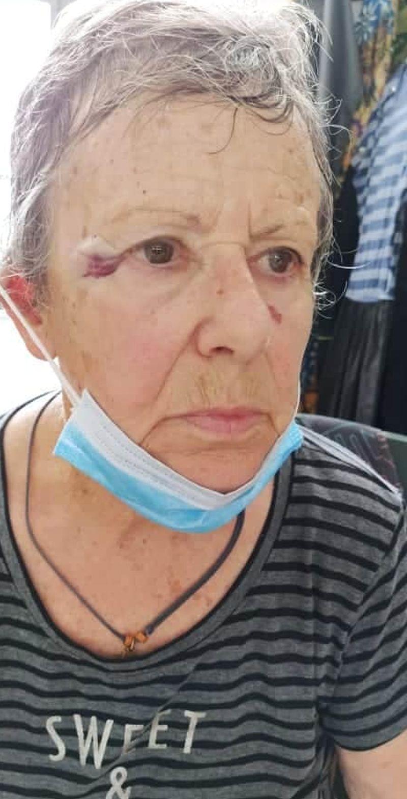 Εύβοια: Ιερέας επιτέθηκε και χτύπησε ηλικιωμένη με σκουπόξυλο επειδή τάιζε τα αδέσποτα της γειτονιάς
